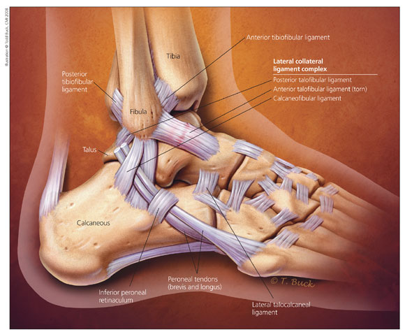 Lateral-Ankle-Sprain.png